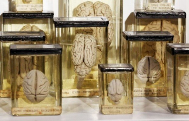 Великобритания передала Бельгии коллекцию человеческих мозгов