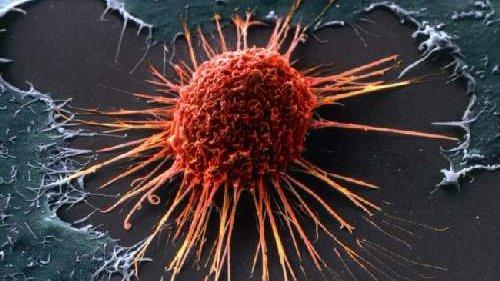 Ученые-онкологи рассказали важные признаки развивающегося рака