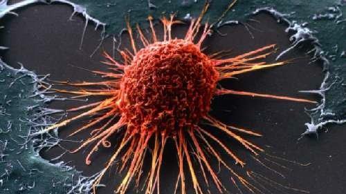 Врачи назвали трисимптома рака предстательной железы